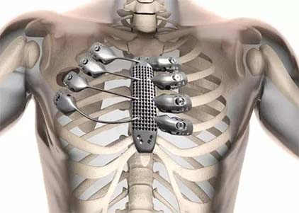 Could Titanium plates be left in the body safely?